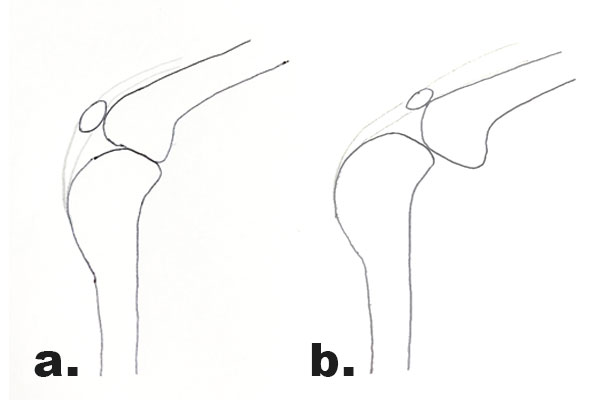 Diagrams showing the normal weight bearing position of the stifle and the displacement of the femur
